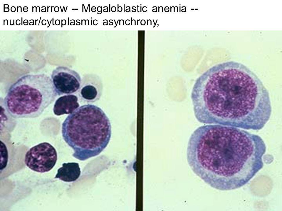 Bone marrow -- Megaloblastic anemia -- nuclear/cytoplasmic asynchrony,