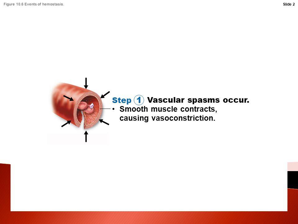 Figure 10.6 Events of hemostasis.