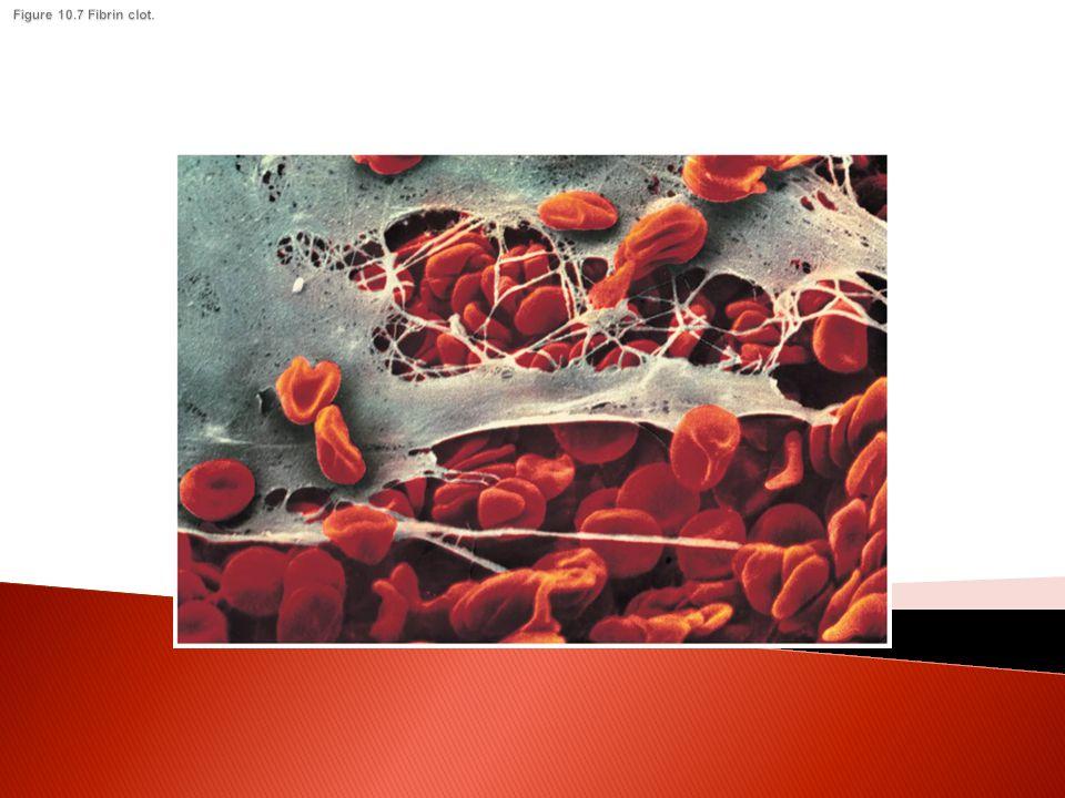 Figure 10.7 Fibrin clot.