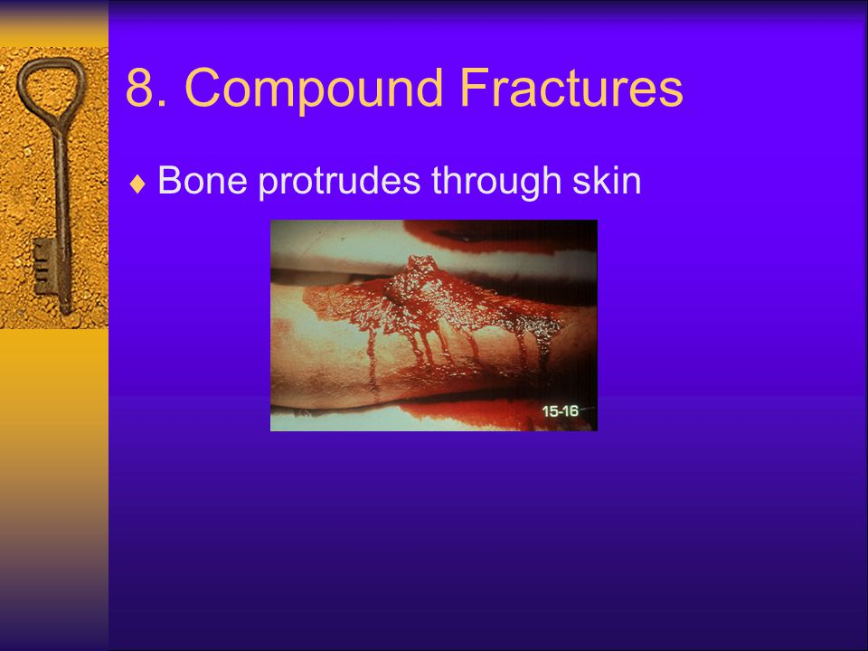 8. Compound Fractures Bone protrudes through skin