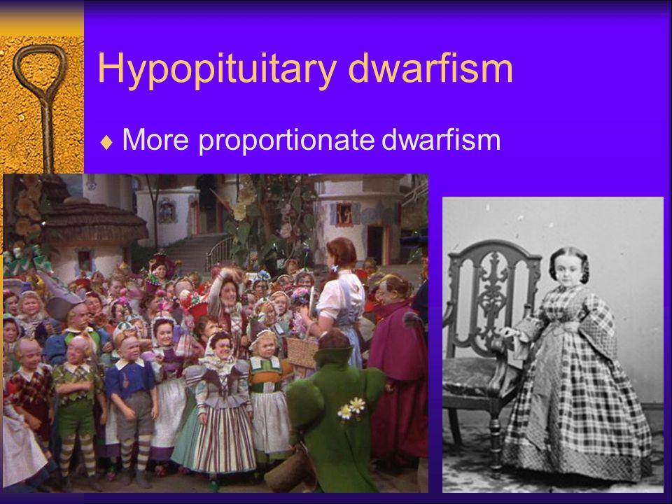 Hypopituitary dwarfism