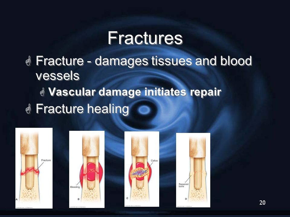 Fractures Fracture - damages tissues and blood vessels