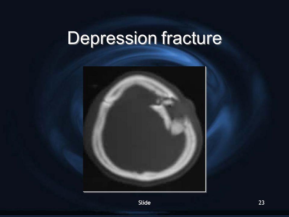 Depression fracture Slide