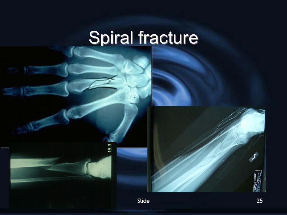 Spiral fracture Slide