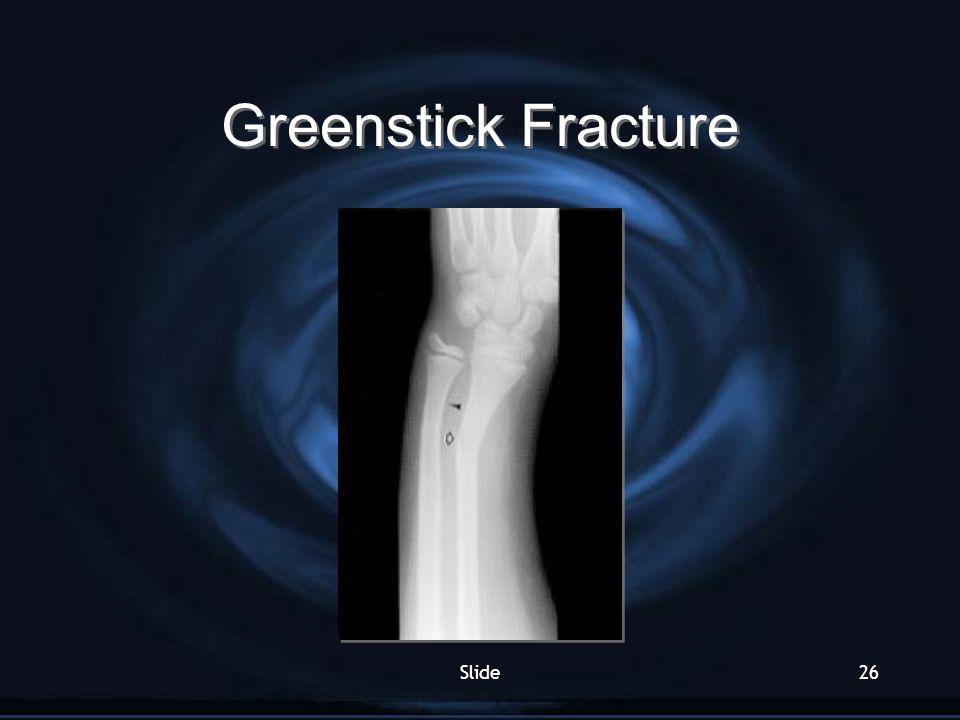 Greenstick Fracture Slide