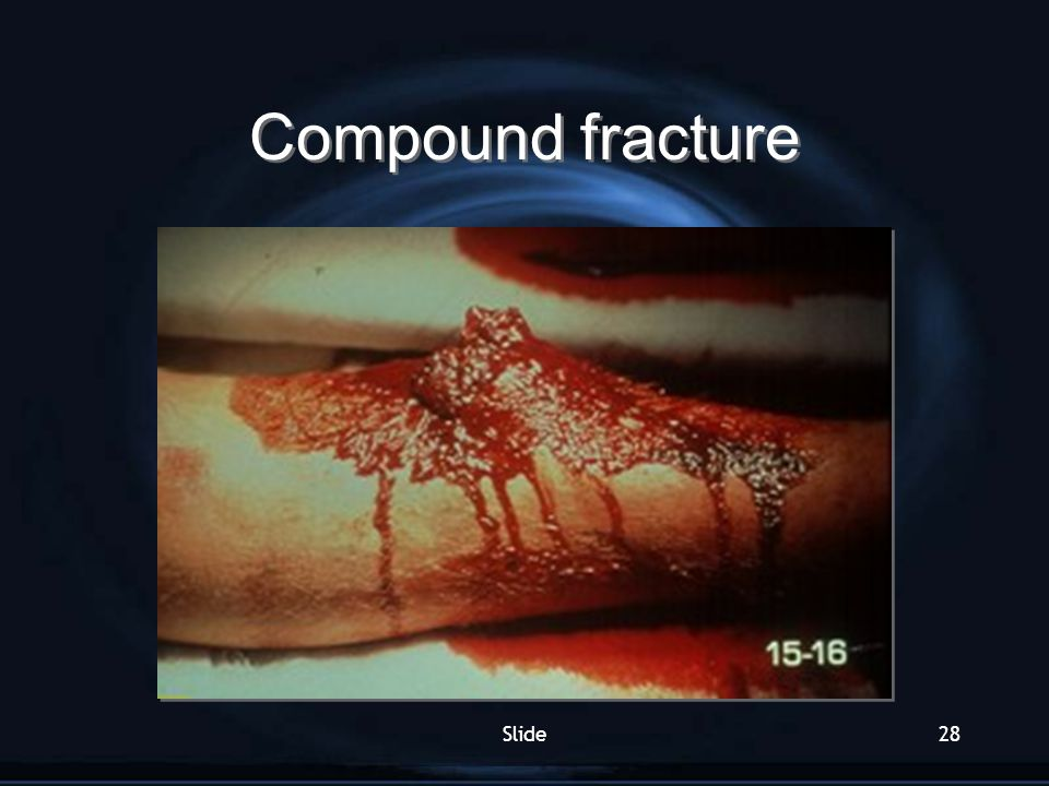 Compound fracture Slide