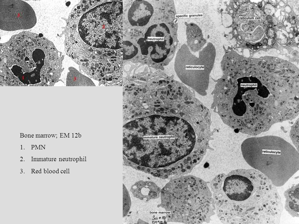 Bone marrow; EM 12b PMN Immature neutrophil Red blood cell