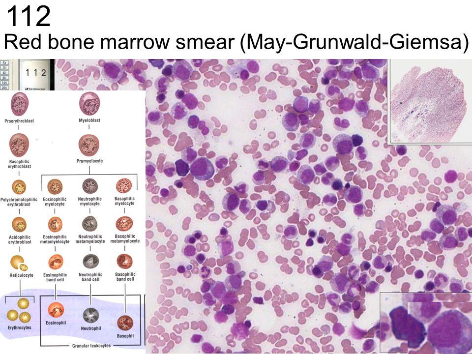 Red bone marrow smear (May-Grunwald-Giemsa)