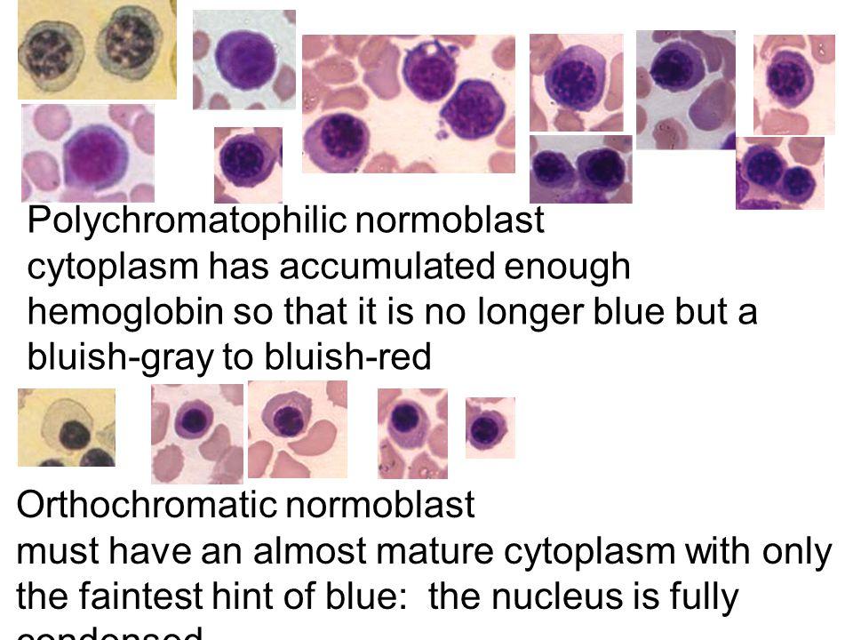 Polychromatophilic normoblast