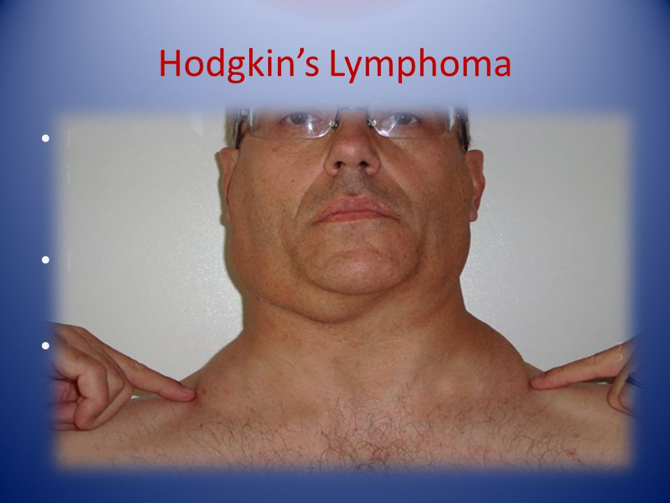 Hodgkin's Lymphoma Rare, M:F = 1.3:1, 90% in over 16s. Peak incidence in 20s. Mostly involves LNs.