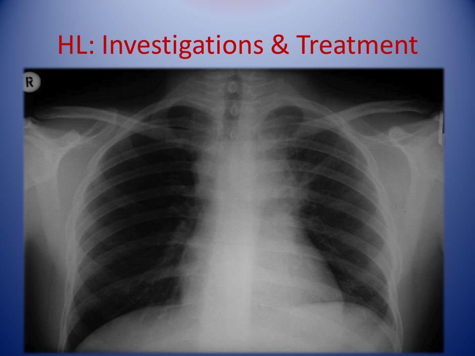 HL: Investigations & Treatment