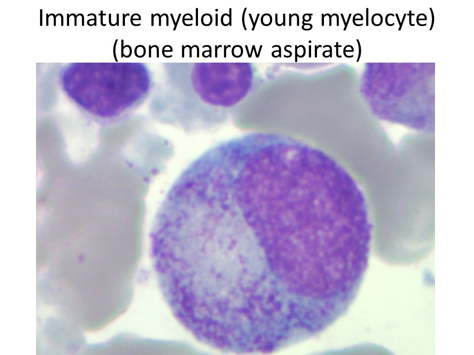 Immature myeloid (young myelocyte) (bone marrow aspirate)