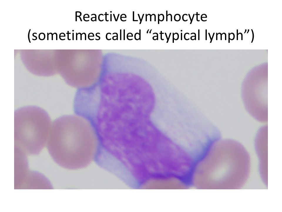 Reactive Lymphocyte (sometimes called atypical lymph )