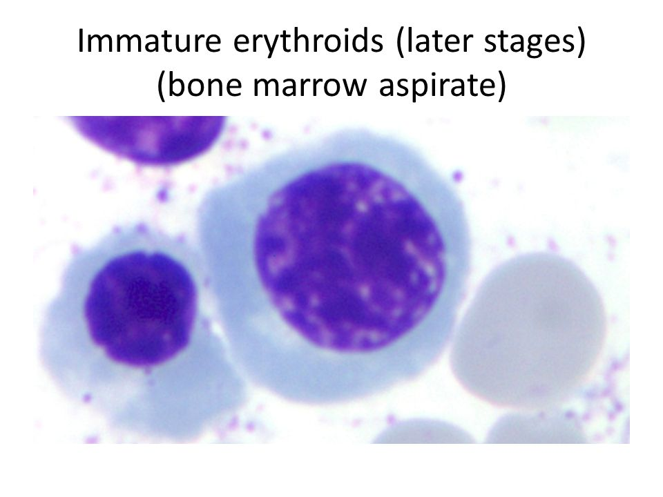 Immature erythroids (later stages) (bone marrow aspirate)