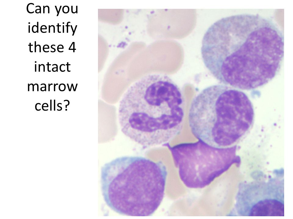 Can you identify these 4 intact marrow cells