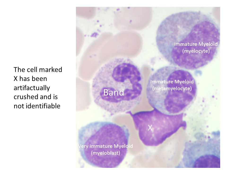 Immature Myeloid (myelocyte) The cell marked X has been artifactually crushed and is not identifiable.