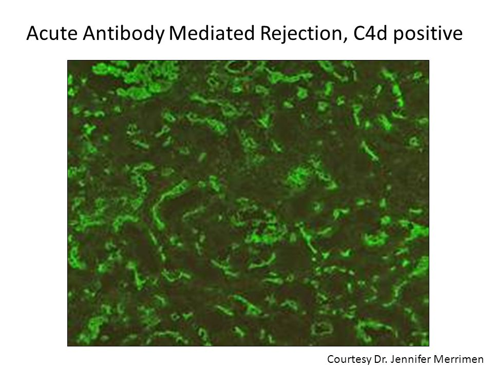 Acute Antibody Mediated Rejection, C4d positive