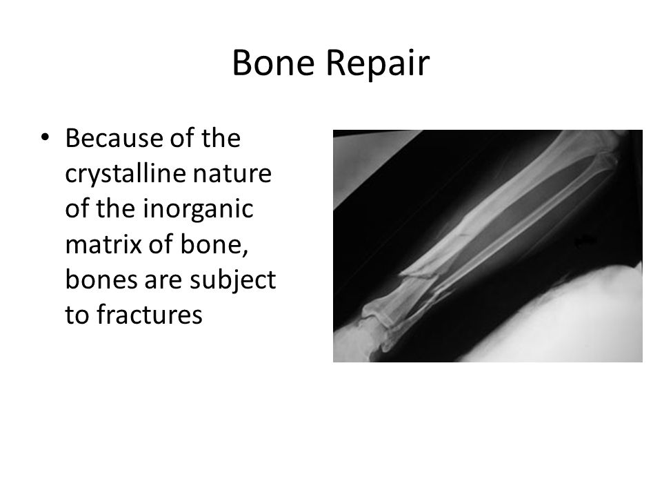 Bone Repair Because of the crystalline nature of the inorganic matrix of bone, bones are subject to fractures.