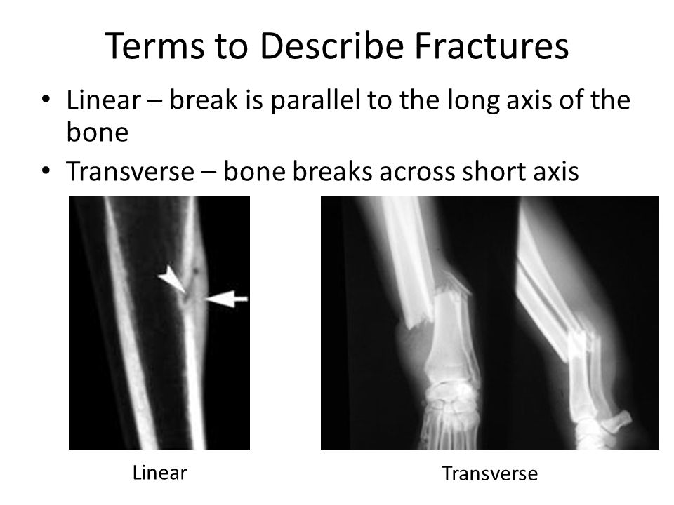 Terms to Describe Fractures