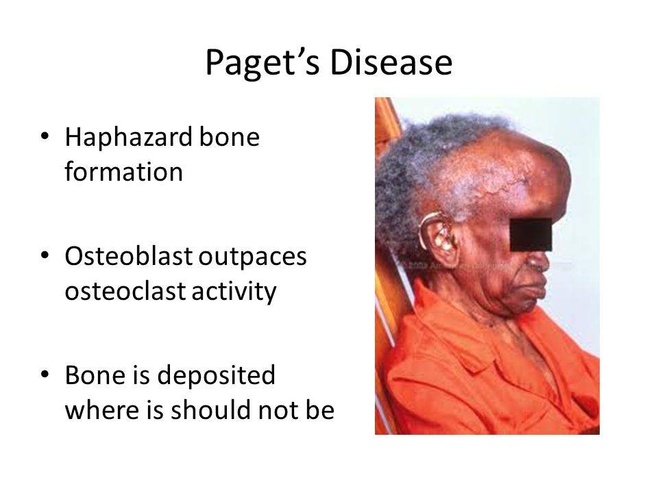 Paget's Disease Haphazard bone formation