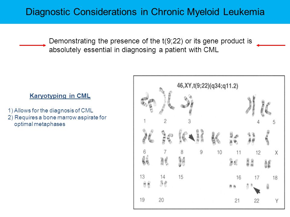 Diagnostic Considerations in Chronic Myeloid Leukemia