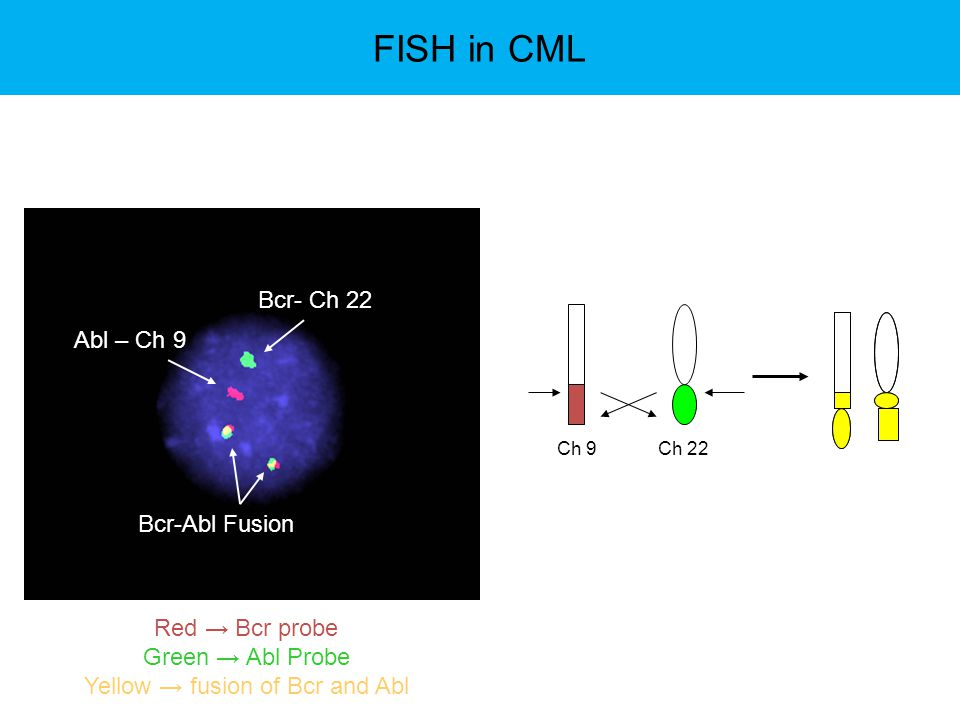 Yellow → fusion of Bcr and Abl