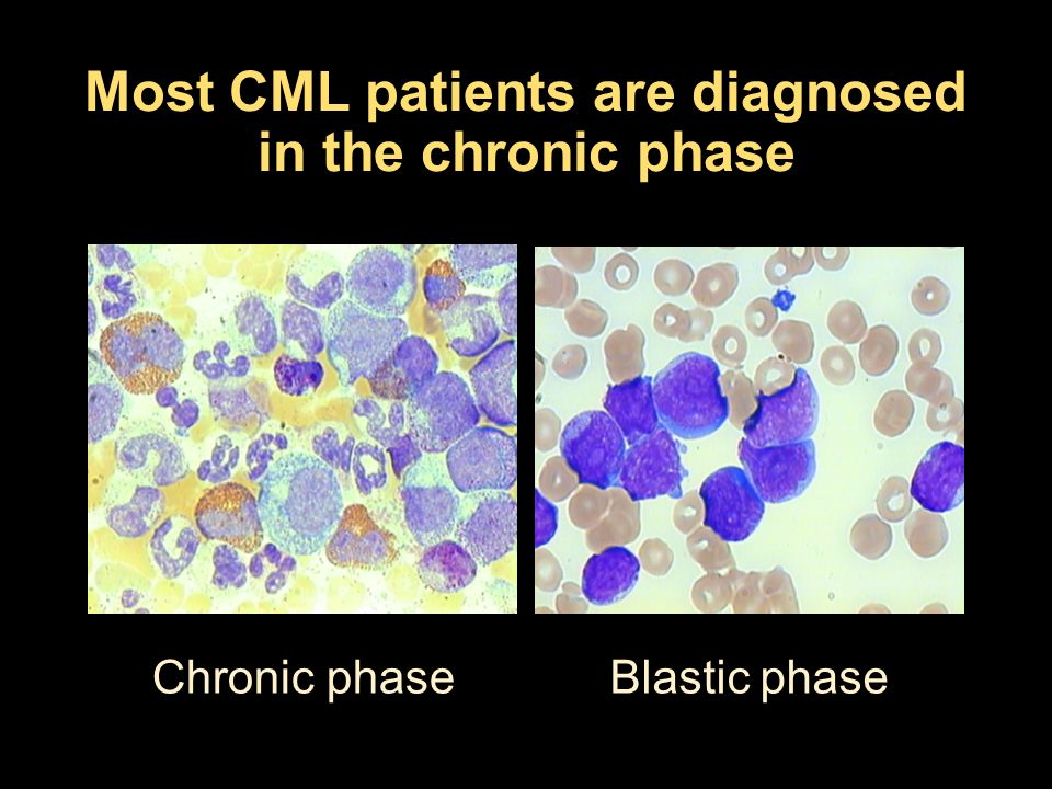 Most CML patients are diagnosed in the chronic phase