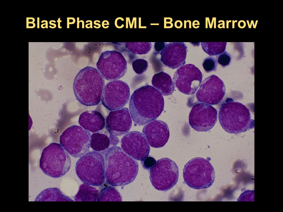 Blast Phase CML – Bone Marrow