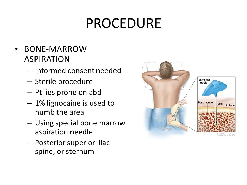 PROCEDURE BONE-MARROW ASPIRATION Informed consent needed