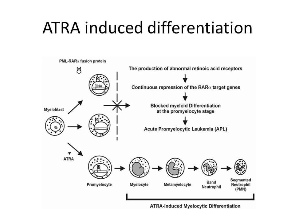 ATRA induced differentiation