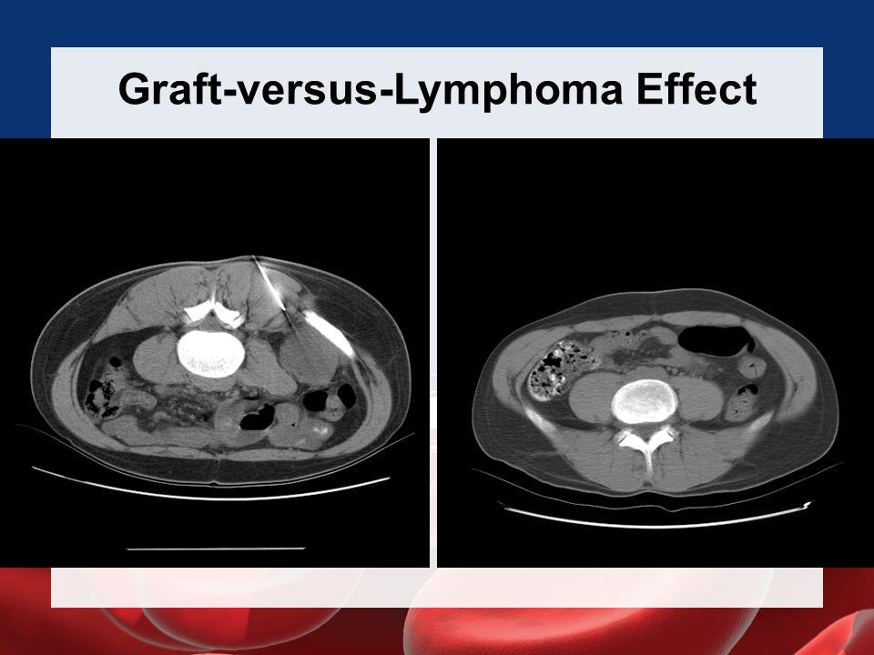 Graft-versus-Lymphoma Effect