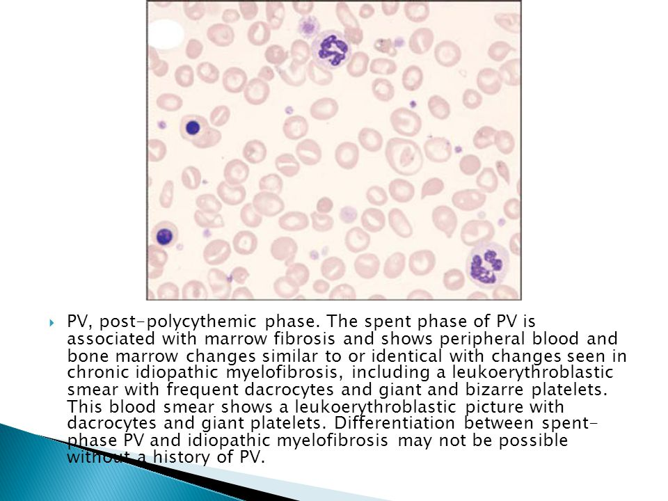 PV, post-polycythemic phase