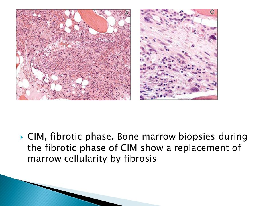 CIM, fibrotic phase.