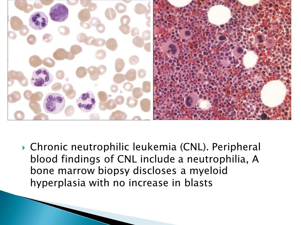 Chronic neutrophilic leukemia (CNL)