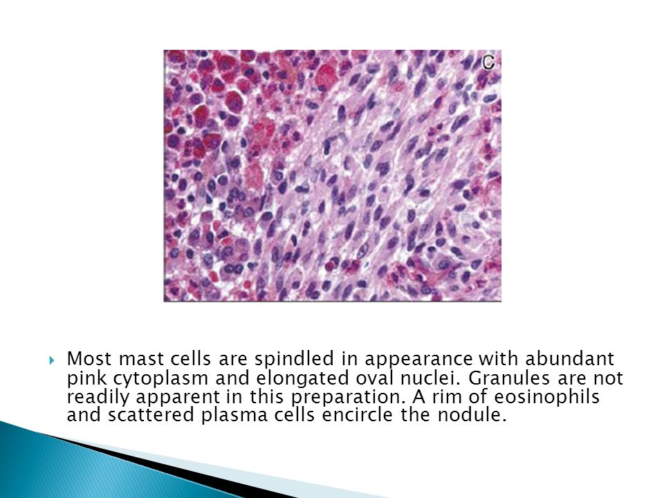 Most mast cells are spindled in appearance with abundant pink cytoplasm and elongated oval nuclei.