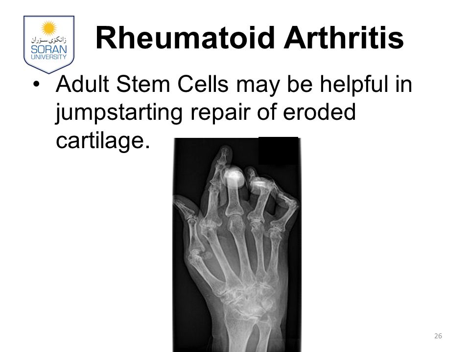 Rheumatoid Arthritis Adult Stem Cells may be helpful in jumpstarting repair of eroded cartilage.