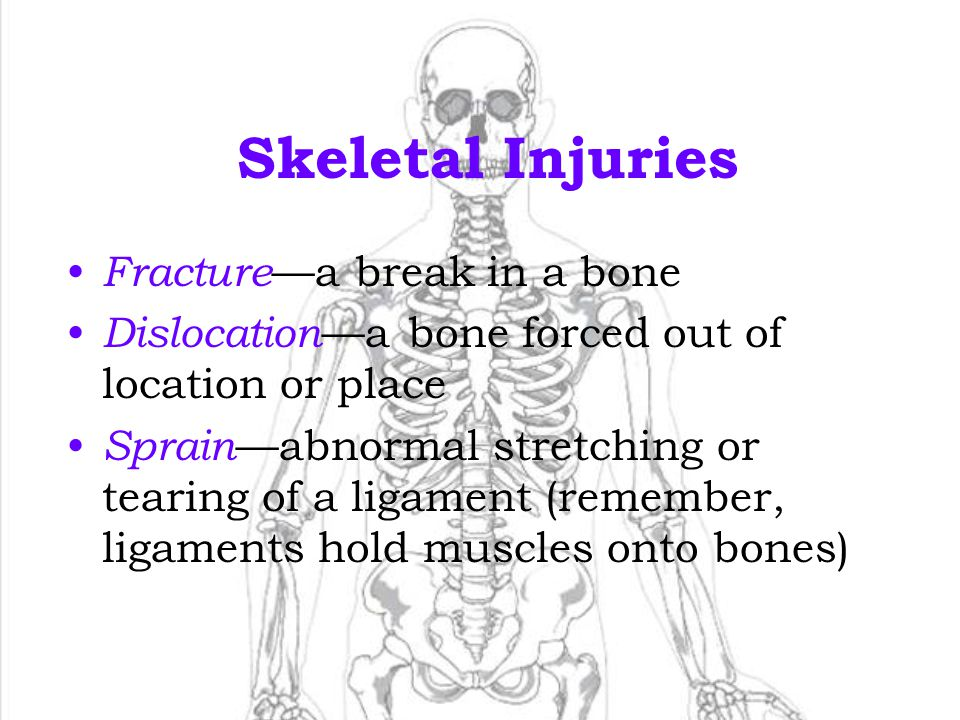 Skeletal Injuries Fracture—a break in a bone