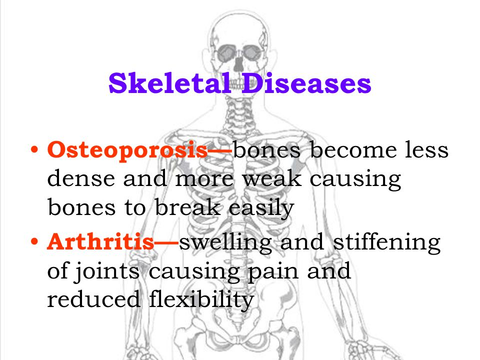 Skeletal Diseases Osteoporosis—bones become less dense and more weak causing bones to break easily.