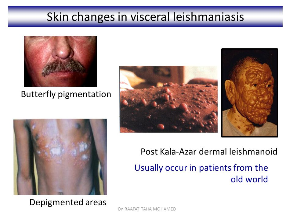 Skin changes in visceral leishmaniasis