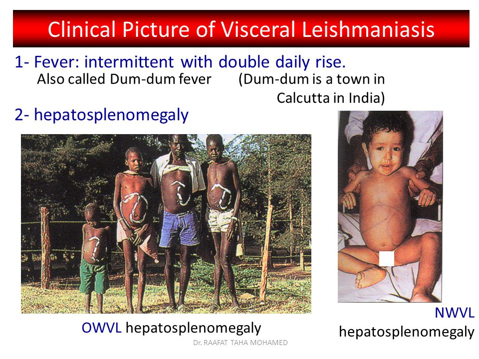 Clinical Picture of Visceral Leishmaniasis