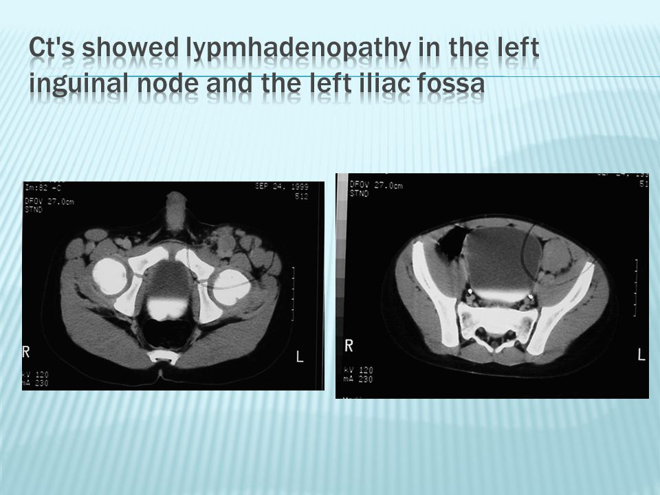Ct s showed lypmhadenopathy in the left inguinal node and the left iliac fossa