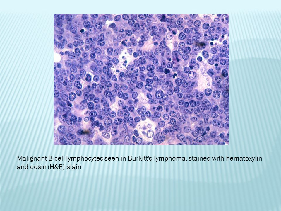 Malignant B-cell lymphocytes seen in Burkitt s lymphoma, stained with hematoxylin and eosin (H&E) stain