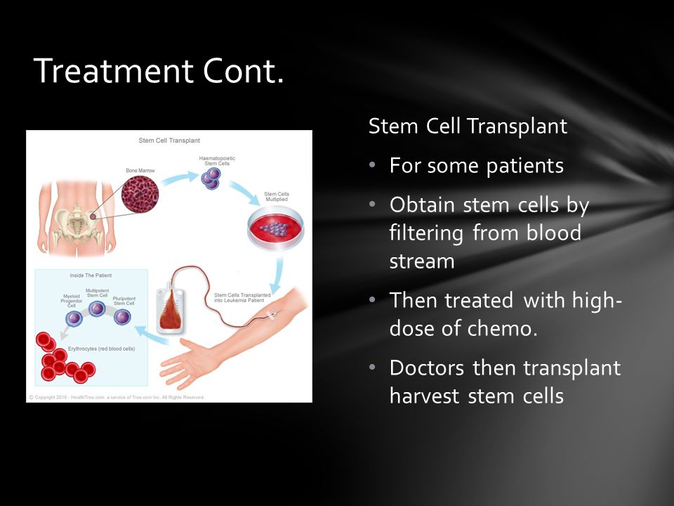 Treatment Cont. Stem Cell Transplant For some patients
