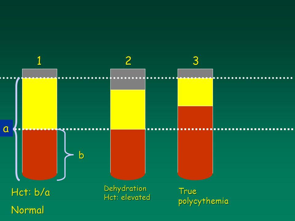 1 2 3 a b Dehydration Hct: elevated Hct: b/a Normal True polycythemia