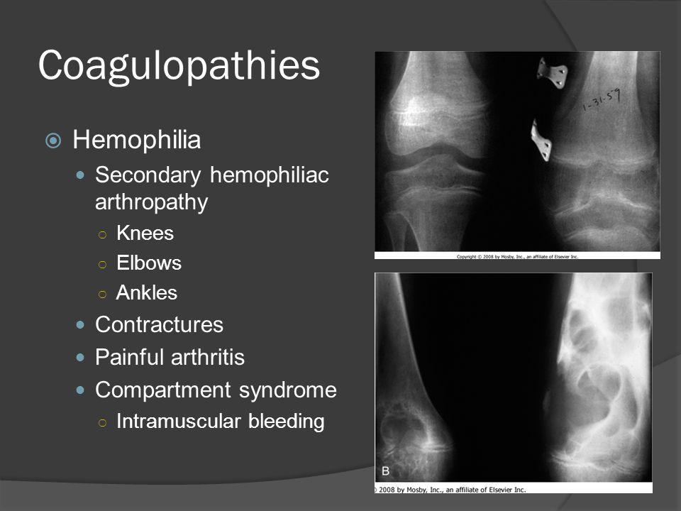 Coagulopathies Hemophilia Secondary hemophiliac arthropathy