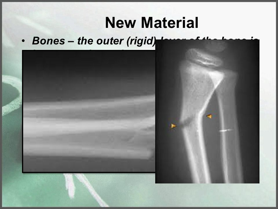 New Material Bones – the outer (rigid) layer of the bone is known as the periosteum.
