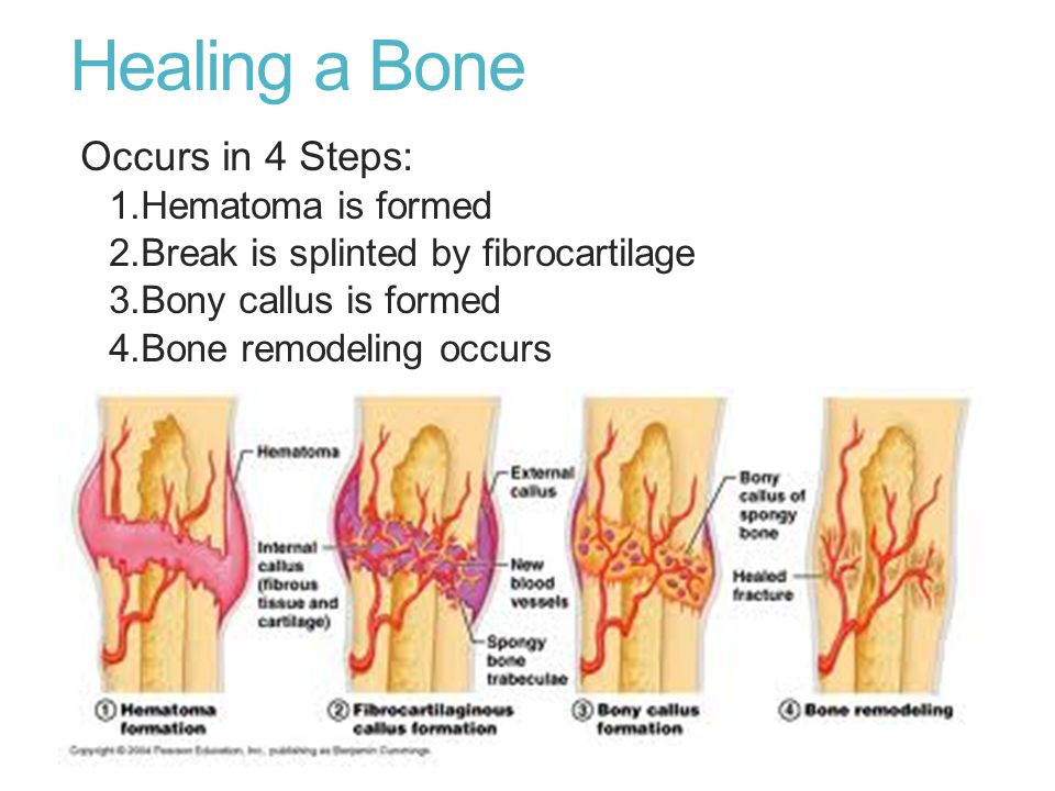 Healing a Bone Occurs in 4 Steps: 1.Hematoma is formed