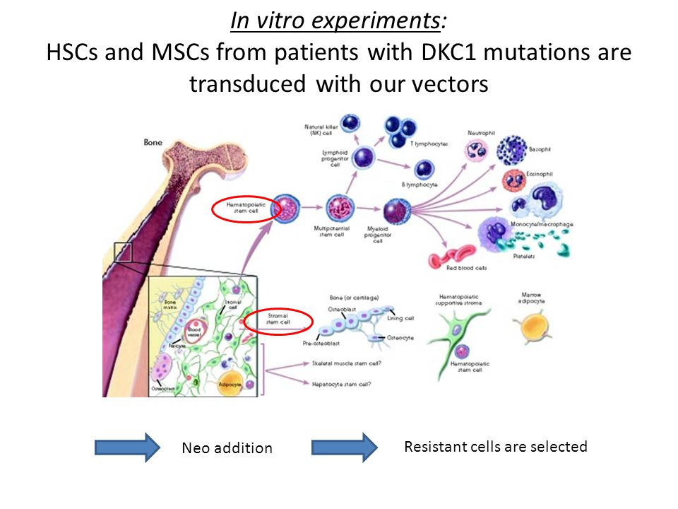In vitro experiments: HSCs and MSCs from patients with DKC1 mutations are transduced with our vectors.