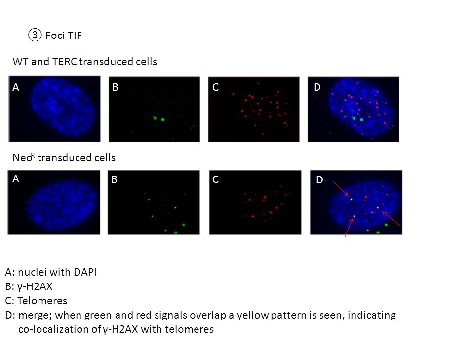 WT and TERC transduced cells