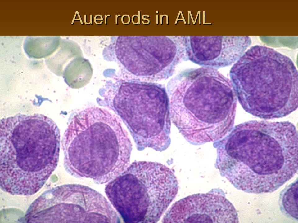 Auer rods in AML